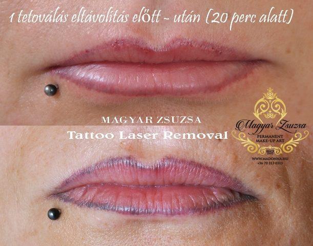 Magyar Zsuzsa-ajak sminktetovalas-Budapest-kozmetikai tetovalas- tetovalas eltavolitas