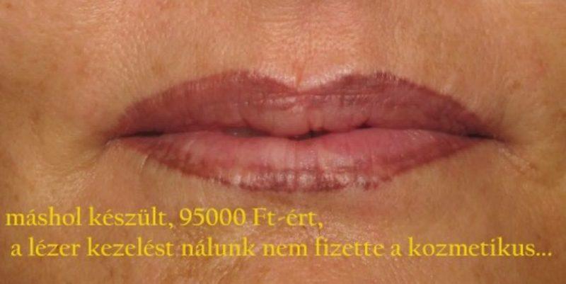 magyar_zsuzsa_mashol_keszult_ajak_sminktetovalas_javitasa