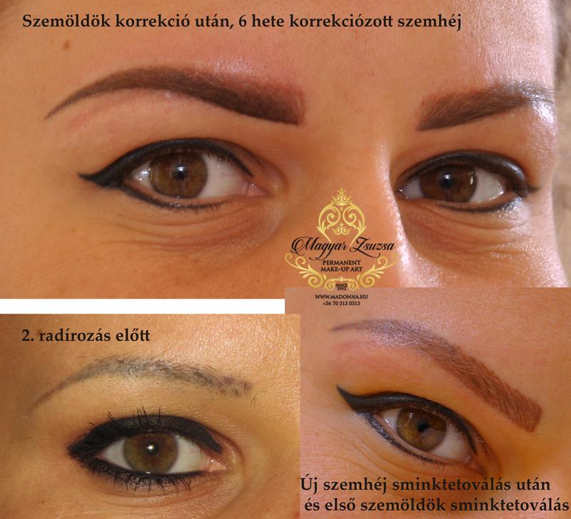magyar_zsuzsa_szemhej_sminktetovalas_lepd_at_a_multat_ (3)