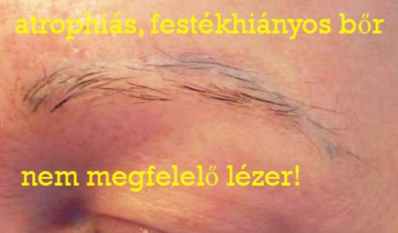 magyar_zsuzsa_lezeres_tetovalas-eltavolitas_89_titok